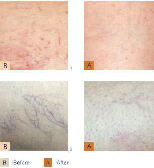 Treatment of Leg and Facial Veins